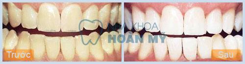 Những điều cần lưu ý sau khi tẩy trắng răng 1