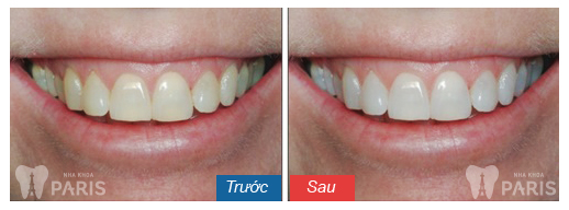 Bleaching-of-Teeth-Before-and-After-Fairlawn-Dental