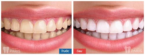 Răng trắng không tốn kém