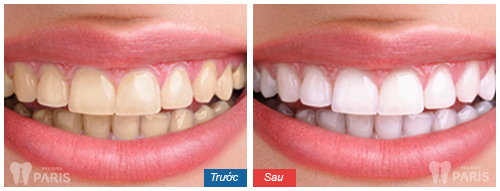 Dental-Bleaching