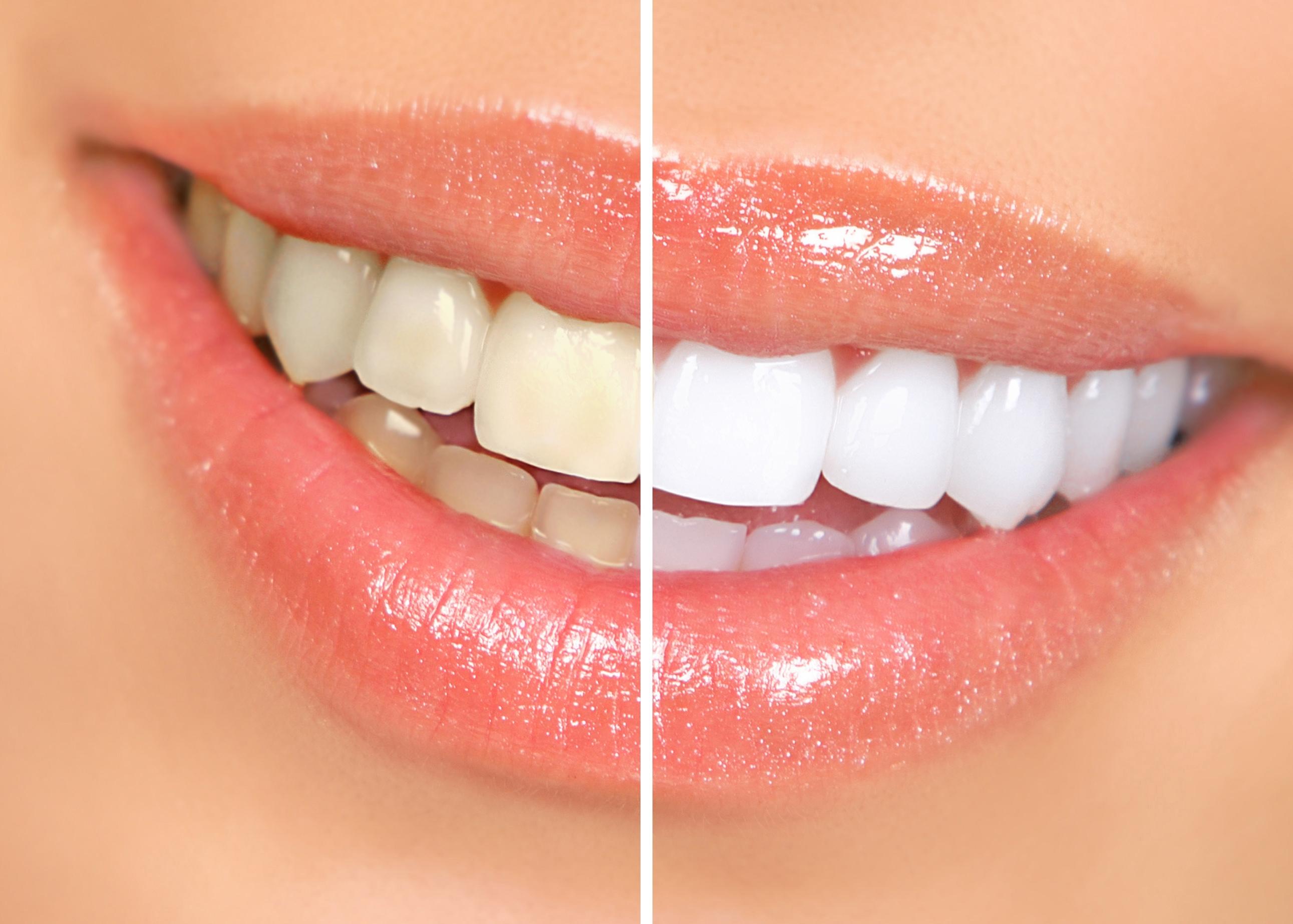 Chia sẻ kinh nghiệm tẩy trắng răng từ A - Z 2