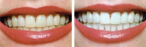 Có phải tẩy trắng răng thường xuyên với những phương pháp tại phòng nha