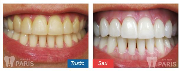 Hình ảnh trước và sau khi tẩy trắng răng laser