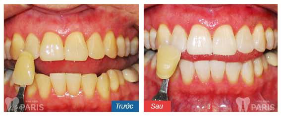 tẩy trắng răng bằng laser cải thiện màu răng tối đa