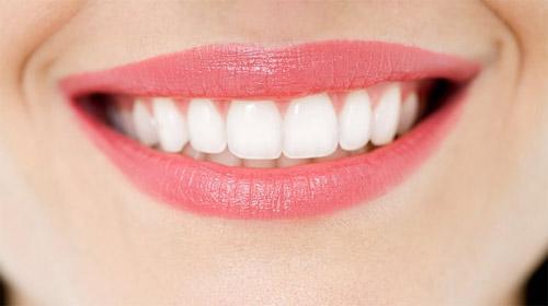 Những điều cần lưu ý sau khi tẩy trắng răng 2