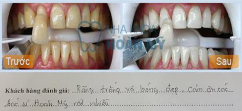 răng thẩm mỹ - nha khoa Hoàn Mỹ8