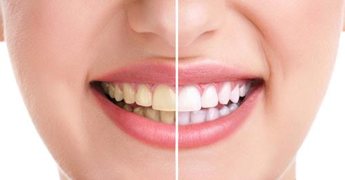 7 nguyên nhân gây vàng răng cơ bản 3