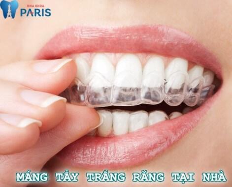 Tìm hiểu từ A - Z về phương pháp làm máng tẩy trắng răng tại nhà 1