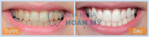 Tẩy trắng răng an toàn giá bao nhiêu tiền?
