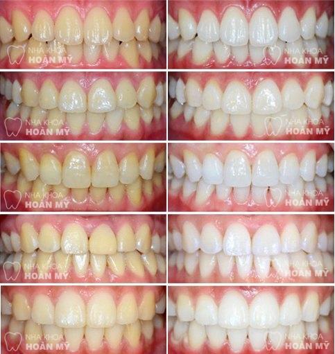 Nguyên nhân ê buốt răng sau khi tẩy trắng và cách khắc phục 5