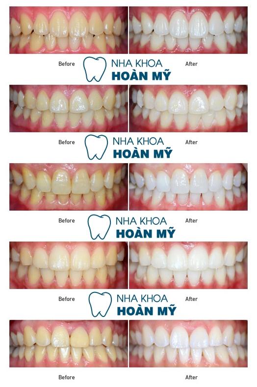 Nguyên nhân và cách cách tẩy răng ố vàng hiệu quả 9