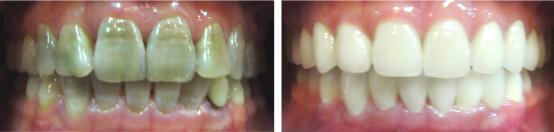 Răng bị vàng từ bên trong có tẩy trắng được không? 3
