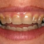 Cách nào tẩy trắng răng bị nhiễm Tetracyline tốt nhất?