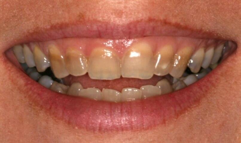 Cách nào tẩy trắng răng bị nhiễm Tetracyline tốt nhất? 1