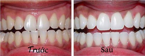 Làm trắng răng giá bao nhiêu tiền là chuẩn nhất