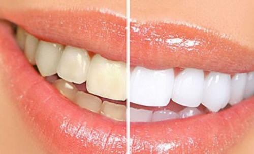 Phương pháp chăm sóc răng sau khi tẩy trắng 2
