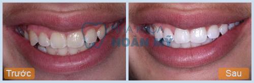 Tẩy trắng răng bằng Laser Whitening hết bao nhiêu tiền?