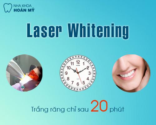 Tẩy trắng răng duy trì được bao lâu 2