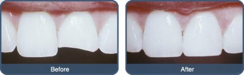 Trám răng cửa bị mẻ mất bao nhiêu tiền?