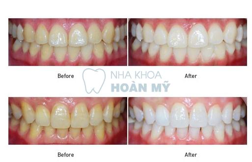 Cách làm trắng răng bị ố vàng với công nghệ Hoa Kỳ tân tiến 1