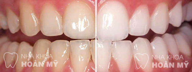Cạo vôi răng có ảnh hưởng gì răng miệng không