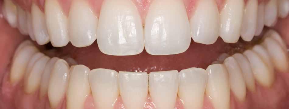 """Thuốc tẩy trắng răng """"CẤP TỐC"""" tại nhà hiệu quả"""