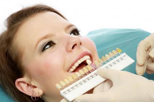 Cách làm trắng răng bị ố vàng với công nghệ Hoa Kỳ tân tiến 2