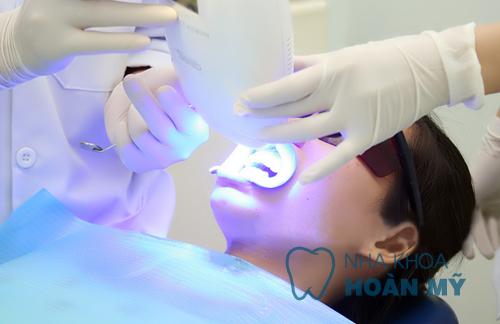 Cách làm trắng răng bị ố vàng với công nghệ Hoa Kỳ tân tiến 3