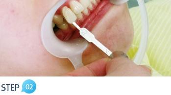 biện pháp làm trắng răng 2