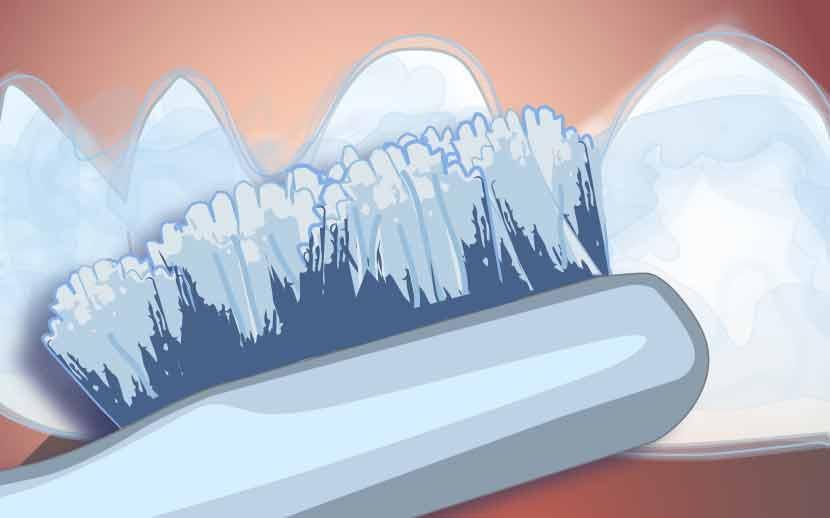"""Thuốc tẩy trắng răng """"CẤP TỐC"""" tại nhà hiệu quả nhất 2017 3"""