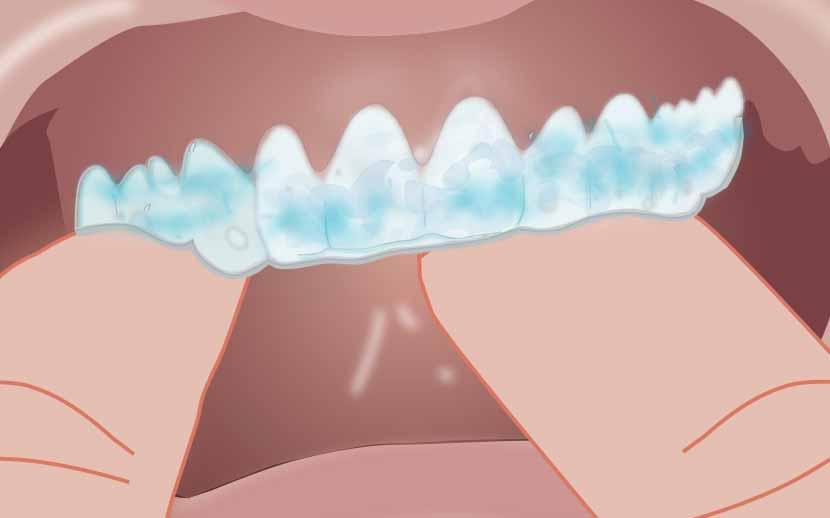 """Thuốc tẩy trắng răng """"CẤP TỐC"""" tại nhà hiệu quả nhất 2017 2"""