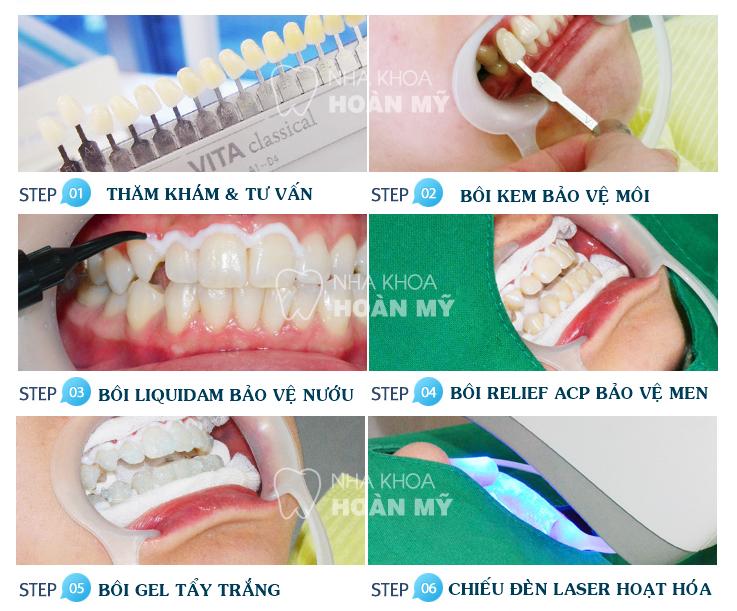 Biện pháp giúp răng trắng sáng hơn