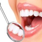 Chi phí cho 1 lần tẩy trắng răng là bao nhiêu?