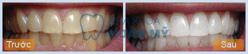 Làm trắng răng bằng miếng dán có thực sự an toàn