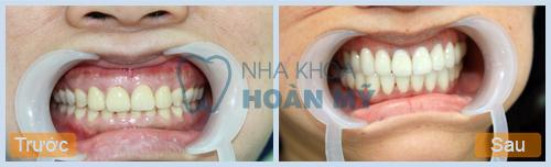 Nên ăn gì sau khi tẩy trắng răng để giữ độ trắng sáng