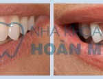 Nên ăn gì sau khi tẩy trắng răng?