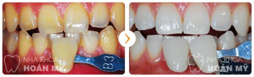 Răng bị vàng từ bên trong có tẩy trắng được không 6