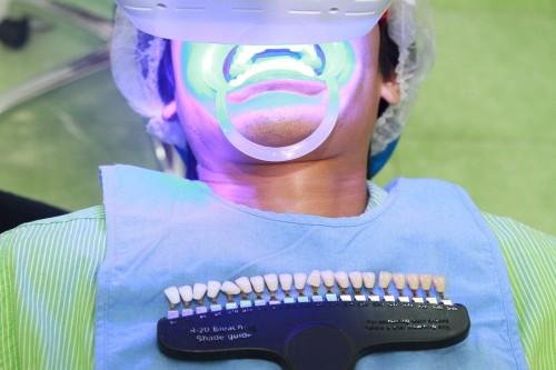Nơi tẩy trắng răng an toàn và hiệu quả tại hà nội