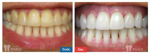 Top 5 mẹo làm trắng răng bị vàng nhanh chóng hiệu quả nhất 5