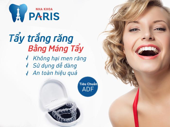 Bật mí về loại máng tẩy trắng răng dùng nhiều lần 2