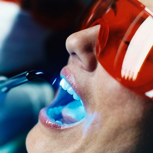 Bất ngờ với những cách làm trắng răng tự nhiên đơn giản nhất 3