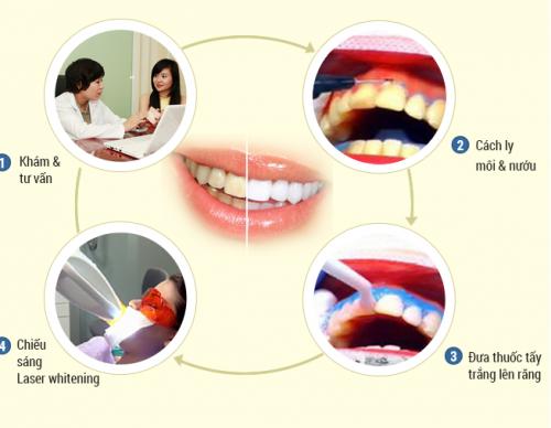 Cách điều trị răng vàng hiệu quả và an toàn tại Paris 2