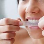Cách sử dụng miếng dán làm trắng răng Crest 3D White