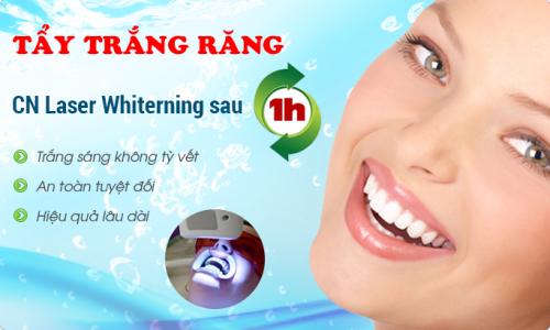 Làm trắng răng vàng ố với công nghệ tiên tiến của Hoa Kỳ 1