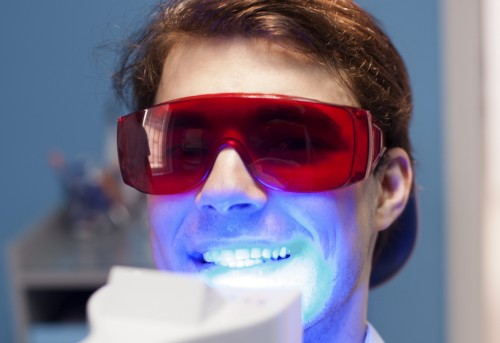 Răng trắng cấp tốc với Laser Whitening