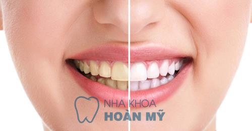Khắc phục răng bị vàng hiệu quả