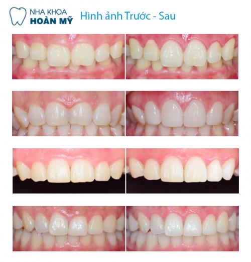 Quy trình công nghệ WhiteMax tẩy trắng răng mất bao lâu 5