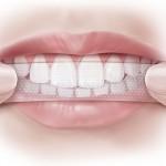 Làm trắng răng cấp tốc tại nhà có an toàn hay không?