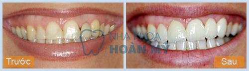 Làm trắng răng cấp tốc tại nhà có an toàn hay không