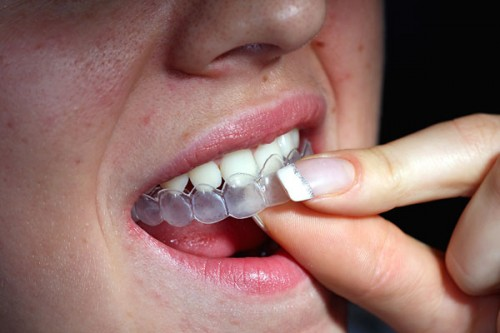 Tẩy trắng răng có hại cho răng không? 1